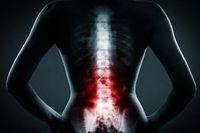 Желатин проти болів у спині і суглобах